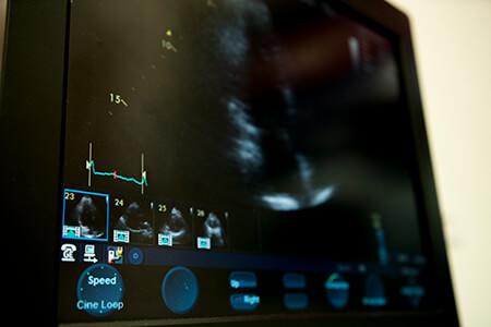 services-echocardiogram-001