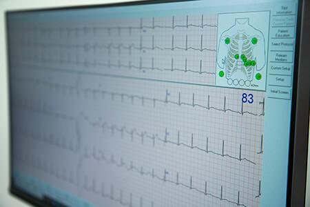 services-echocardiograph-001